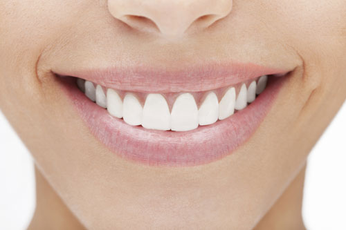 Porcelain veneers can greatly improve the beauty of your smile